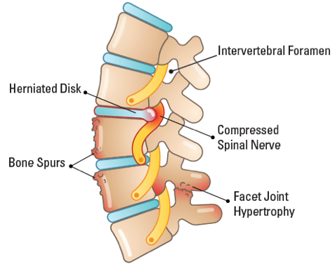 Side View Graphic of Spine Pain Sources
